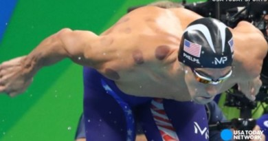 How cupping works and why Olympic athletes use it